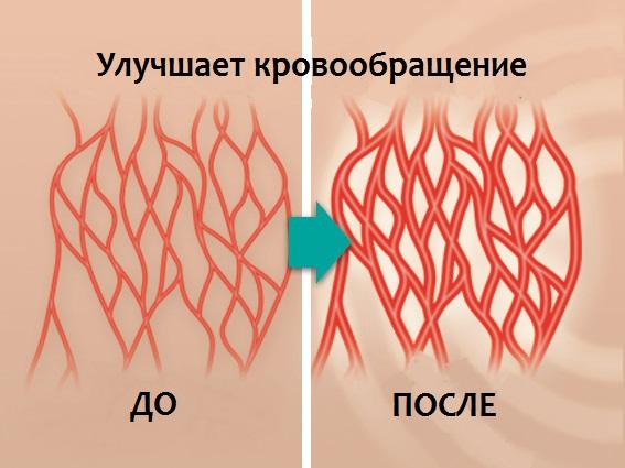 электромагнит для улучшения кровообращения производители могут